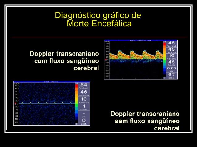 Como é Realizado o Doppler Transcraniano