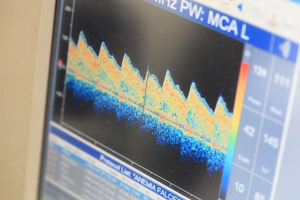 exame de doppler transcraniano