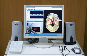 Indicações Neurológicas do Doppler Transcraniano