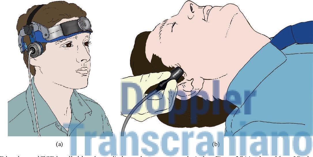 Dúvidas sobre o Doppler Transcraniano